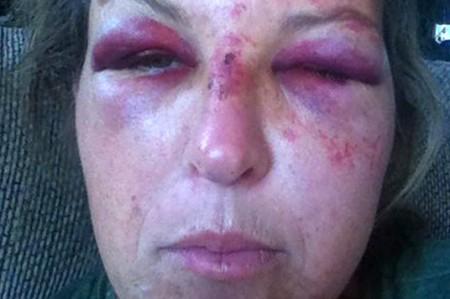 Dueña de guardería recibe brutal golpiza por proteger a tres hermanitos