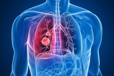 Estudian nuevos métodos para combatir el cáncer de pulmón