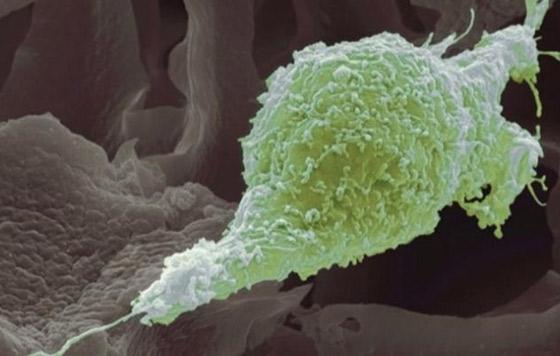 celula-cancerigena