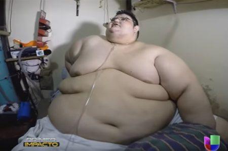 Hombre más obeso del mundo pesa más de lo que creía