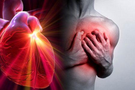 Mitos sobre los infartos