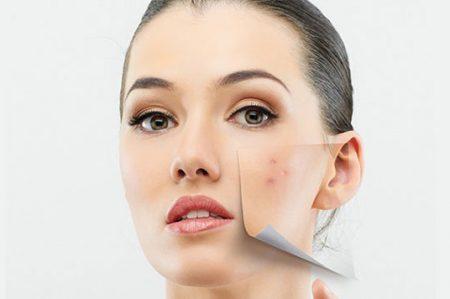 Borra las marcas en la piel