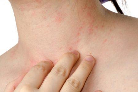 ¡Cuidado! Enfermedades de la piel por culpa del sexo