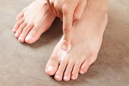 Cinco tips para evitar el pie de atleta