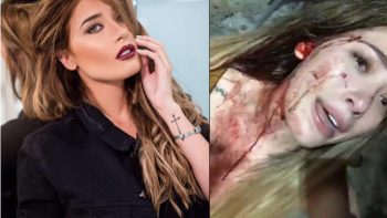 Integrante de 'Acapulco Shore' revela que fue golpeada en antro
