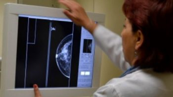 Identifican gen relacionado con resistencia a tratamientos de cáncer de mama