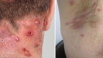 Hidradenitis supurativa daña autoestima de pacientes