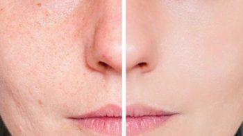 Cómo eliminar las cicatrices y marcas de acné