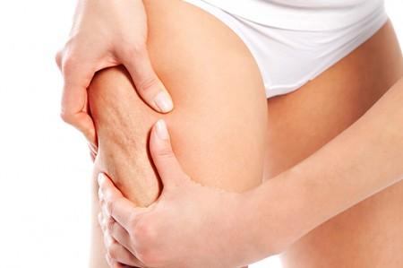 ¿Se puede eliminar la celulitis completamente?