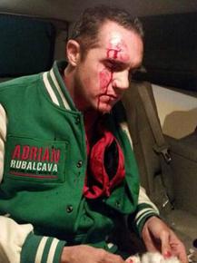 Reportan 21 lesionados por gresca en Cuajimalpa