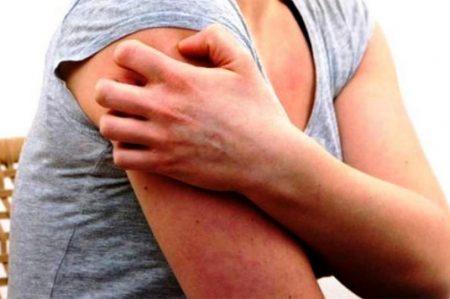La ropa ajustada empeora síntomas de urticaria crónica