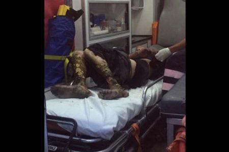 Queman piernas a presunto ladrón en Edomex