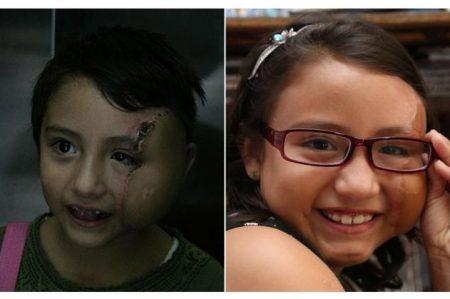 Lista para cumplir mis sueños: niña con cara reconstruida