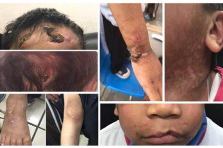 'Abuela torturadora'  maltrató y deformó  a otro niño