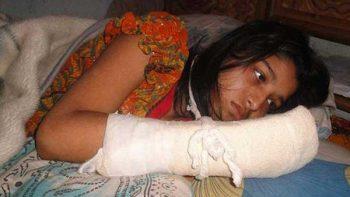 Hombre en Bangladesh corta dedos a esposa para evitar que estudie