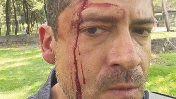 Vendedores de droga golpean a periodista en CU de la UNAM