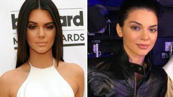 El antes y el después de las cirugías de Kendall Jenner