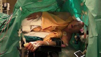 IMSS extirpa tumor cerebral en paciente despierto