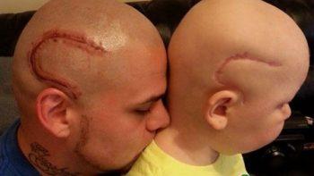 Muere Gabriel, el niño cuyo padre se tatuó una cicatriz idéntica a la suya