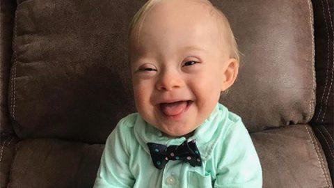 Lucas, primer bebé Gerber con síndrome de Down