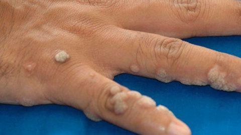 Mezquinos en la piel advierten presencia del VPH