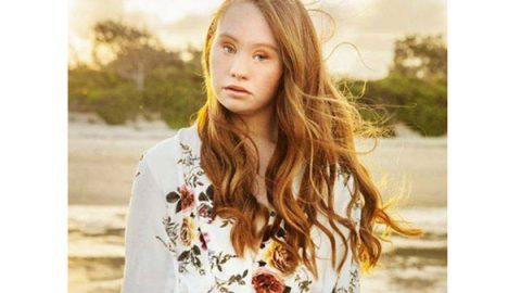 Madeline venció los obstáculos del Síndrome de Down para convertirse en modelo profesional (FOTOS)