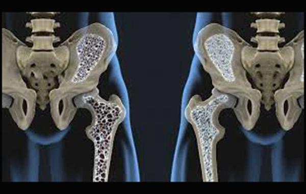 que medicamento tomar para la osteopenia