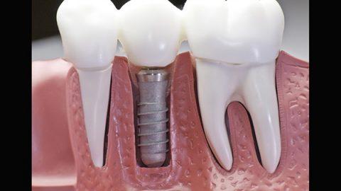 Implantes dentales la mejor opción