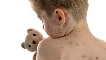 Entre la varicela y la culebrilla hay sólo un paso