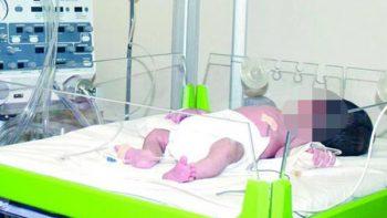 Aumenta número de nacimientos prematuros: IMSS