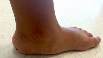 El pie plano se puede corregir a tiempo