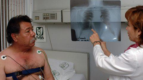 Enfermedad pulmonar obstructiva, sexta causa de muertes en el IMSS