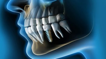 Implantes inmediatos post extracción