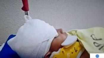 Niño de cinco años es apuñalado en la cabeza por otro menor